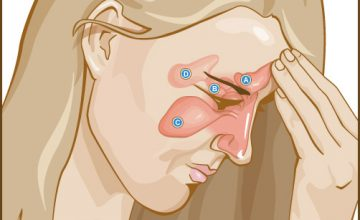 possible locations of sinusitis in children